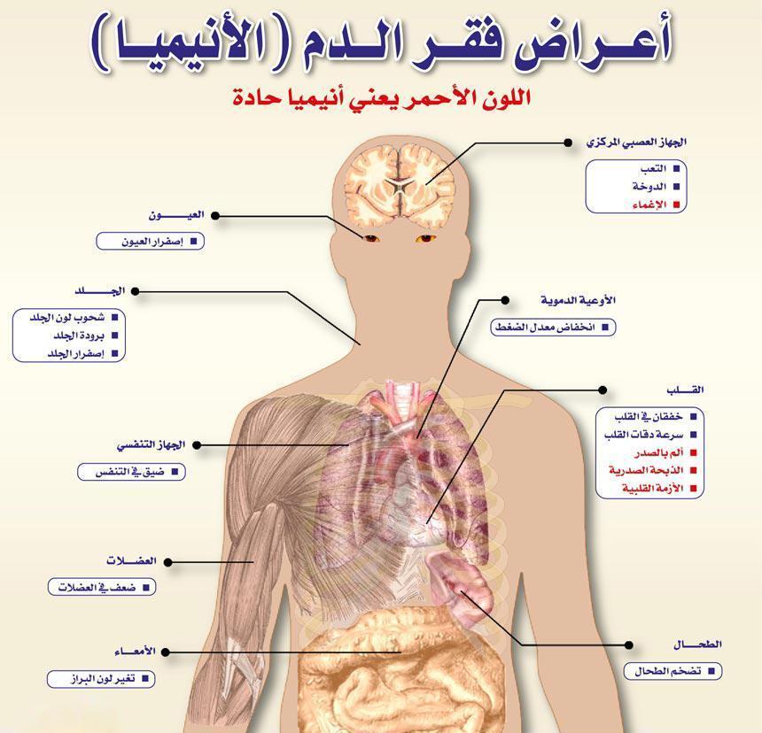 أعراض فقر الدم نافذة دمياط