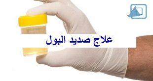 علاج صديد البول