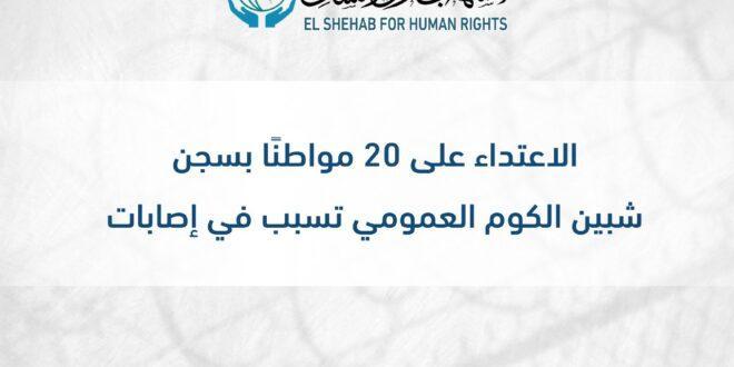 #انتهاكات_بحق_المعتقلين| الاعتداء على 20 مواطنًا بسجن شبين الكوم العمومي تسبب في إصابات #مصر