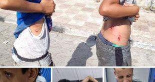 بالصور .. تزايد مرعب لإعتداءات الكلاب الضالة على الدمايطة فى كل الشوارع