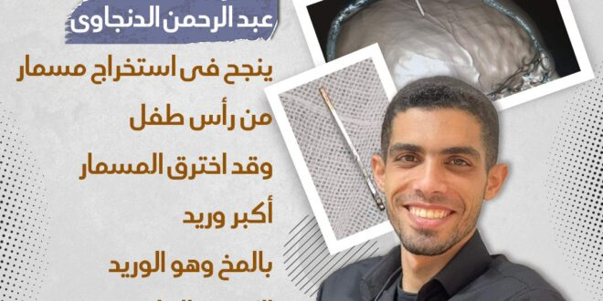 إنجاز طبي للطبيب الشاب عبد الرحمن الدنجاوي في مستشفى التخصصي قسم الطوارئ